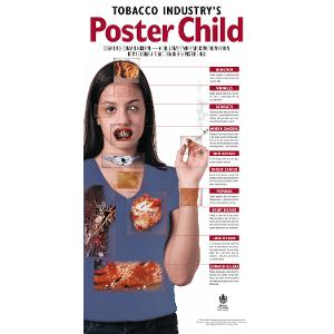 Tobacco Industry's Poster Child Poster (Laminated)